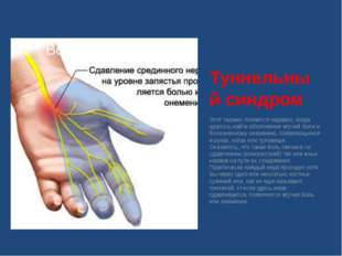 Туннельный синдром Этот термин появился недавно, когда удалось найти объяснен