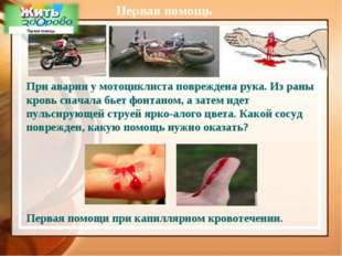 Первая помощь При аварии у мотоциклиста повреждена рука. Из раны кровь сначал