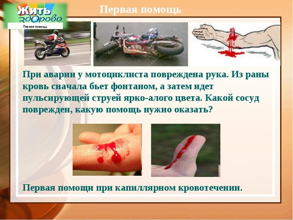 Первая помощь При аварии у мотоциклиста повреждена рука. Из раны кровь сначал...