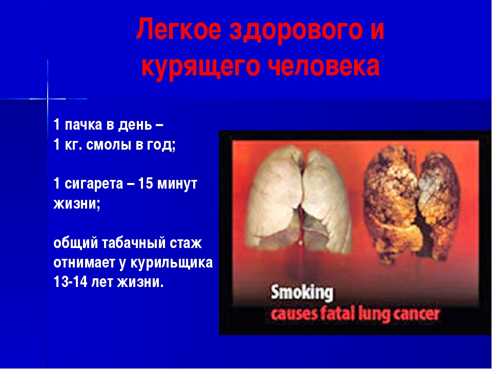 Легкое здорового и курящего человека 1 пачка в день – 1 кг. смолы в год; 1 си...