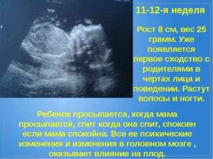 11-12-я неделя Рост 8 см, вес 25 грамм. Уже появляется первое сходство с роди