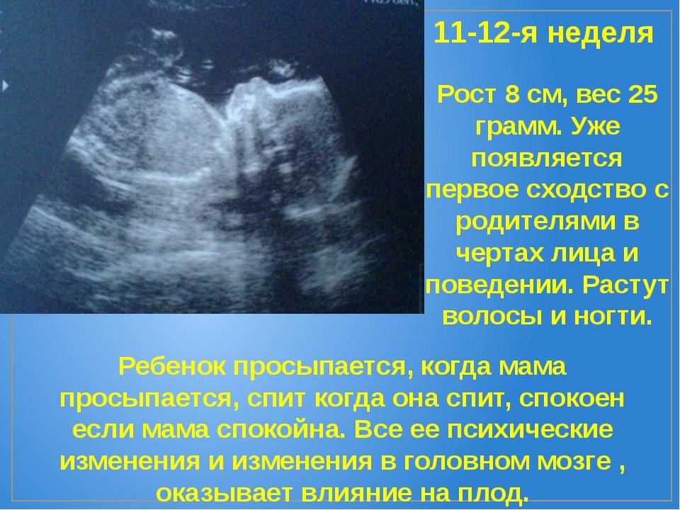 11-12-я неделя Рост 8 см, вес 25 грамм. Уже появляется первое сходство с роди...