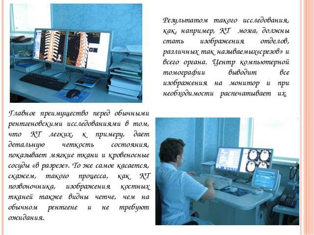 Результатом такого исследования, как, например, КТ мозга, должны стать изобра...