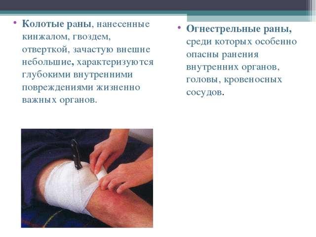 Колотые раны, нанесенные кинжалом, гвоздем, отверткой, зачастую внешне неболь...