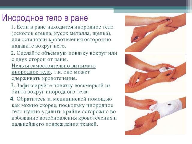 Инородное тело в ране 1. Если в ране находится инородное тело (осколок стекла...
