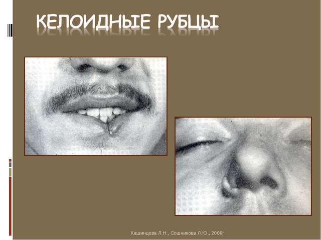 Кашинцева Л.Н., Сошникова Л.Ю., 2006г Кашинцева Л.Н., Сошникова Л.Ю., 2006г