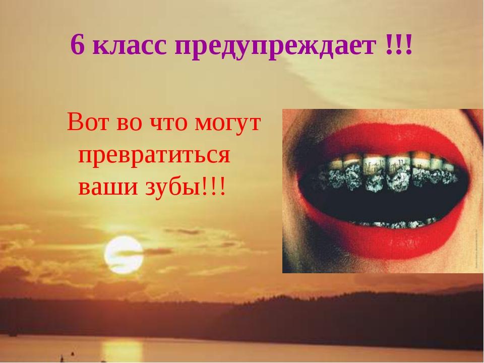 6 класс предупреждает !!! Вот во что могут превратиться ваши зубы!!!
