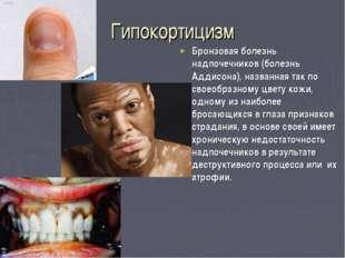 Гипокортицизм Бронзовая болезнь надпочечников (болезнь Аддисона), названная т