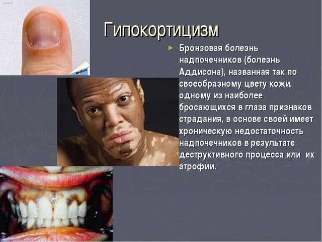 Гипокортицизм Бронзовая болезнь надпочечников (болезнь Аддисона), названная т...
