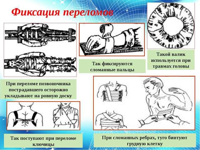 Фиксация переломов Такой валик используется при травмах головы Так фиксируютс...