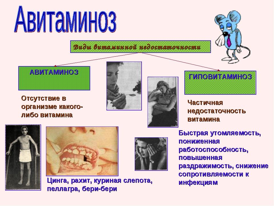 Виды витаминной недостаточности АВИТАМИНОЗ ГИПОВИТАМИНОЗ Отсутствие в организ...