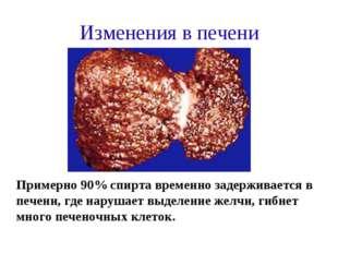 Изменения в печени Примерно 90% спирта временно задерживается в печени, где