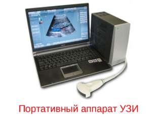 Портативный аппарат УЗИ