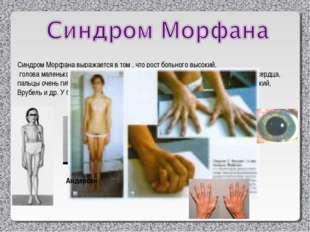 Синдром Морфана выражается в том , что рост больного высокий, голова маленька
