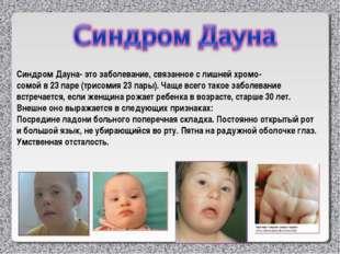 Синдром Дауна- это заболевание, связанное с лишней хромо- сомой в 23 паре (тр