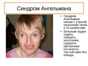 Синдром Ангельмана Синдром Ангельмана связан с утратой нескольких генов в 15