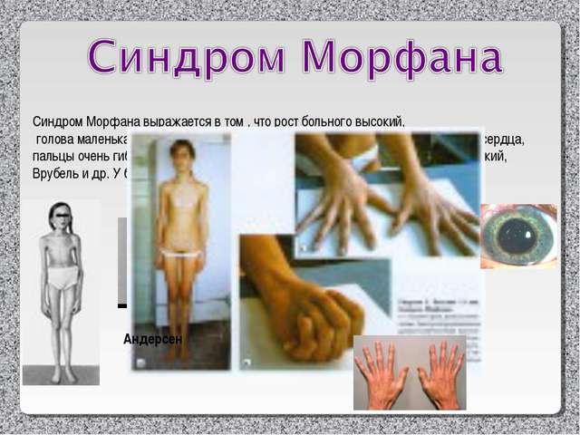Синдром Морфана выражается в том , что рост больного высокий, голова маленька...