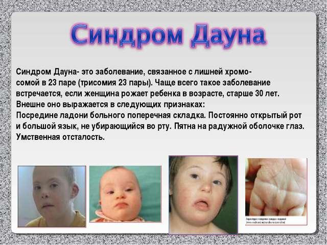 Синдром Дауна- это заболевание, связанное с лишней хромо- сомой в 23 паре (тр...