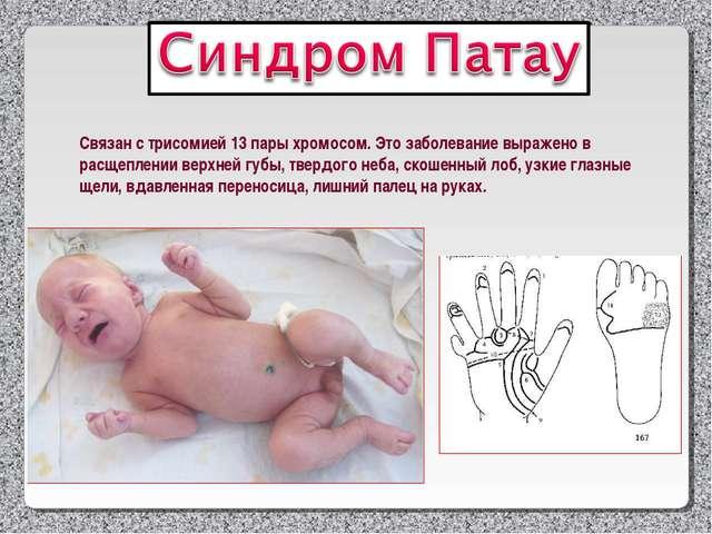 Связан с трисомией 13 пары хромосом. Это заболевание выражено в расщеплении в...