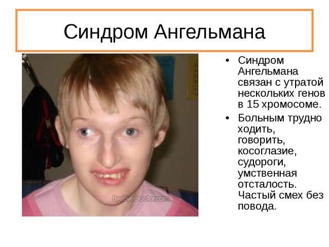Синдром Ангельмана Синдром Ангельмана связан с утратой нескольких генов в 15...