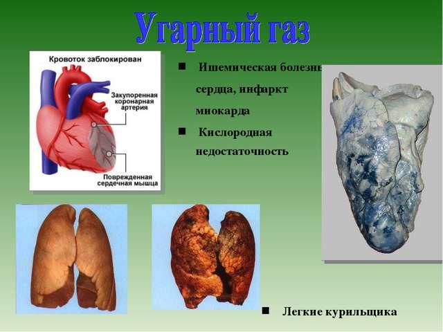 Ишемическая болезнь сердца, инфаркт миокарда Кислородная недостаточность Легк...