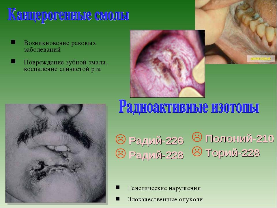 Возникновение раковых заболеваний Повреждение зубной эмали, воспаление слизис...