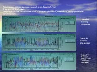 Пульсограмма и кривая дыхания ученика 1 «а» кл. Кирилла Р., 7лет Диагноз: ППЦ