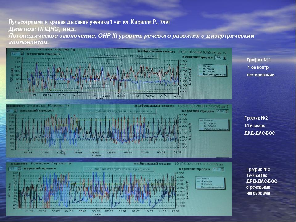 Пульсограмма и кривая дыхания ученика 1 «а» кл. Кирилла Р., 7лет Диагноз: ППЦ...
