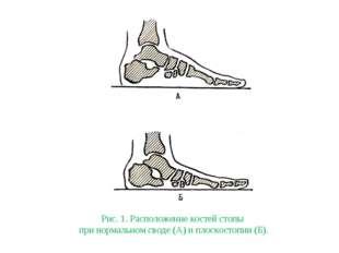 Рис. 1. Расположение костей стопы при нормальном своде (А) и плоскостопии (Б).