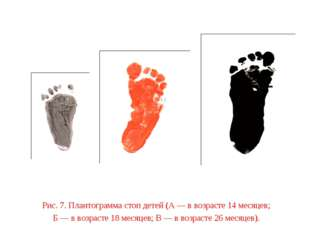 Рис. 7. Плантограмма стоп детей (А — в возрасте 14 месяцев; Б — в возрасте 18