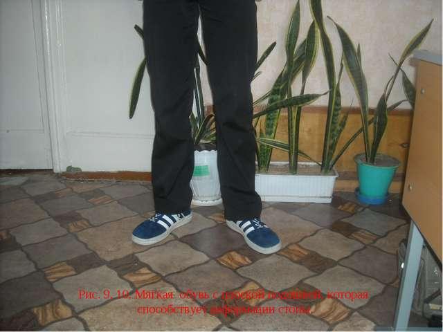 Рис. 9, 10. Мягкая обувь с плоской подошвой, которая способствует деформации...