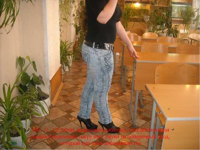 Рис. 11, 12. Обувь на высоких каблуках, способствующая перераспределению нагр...
