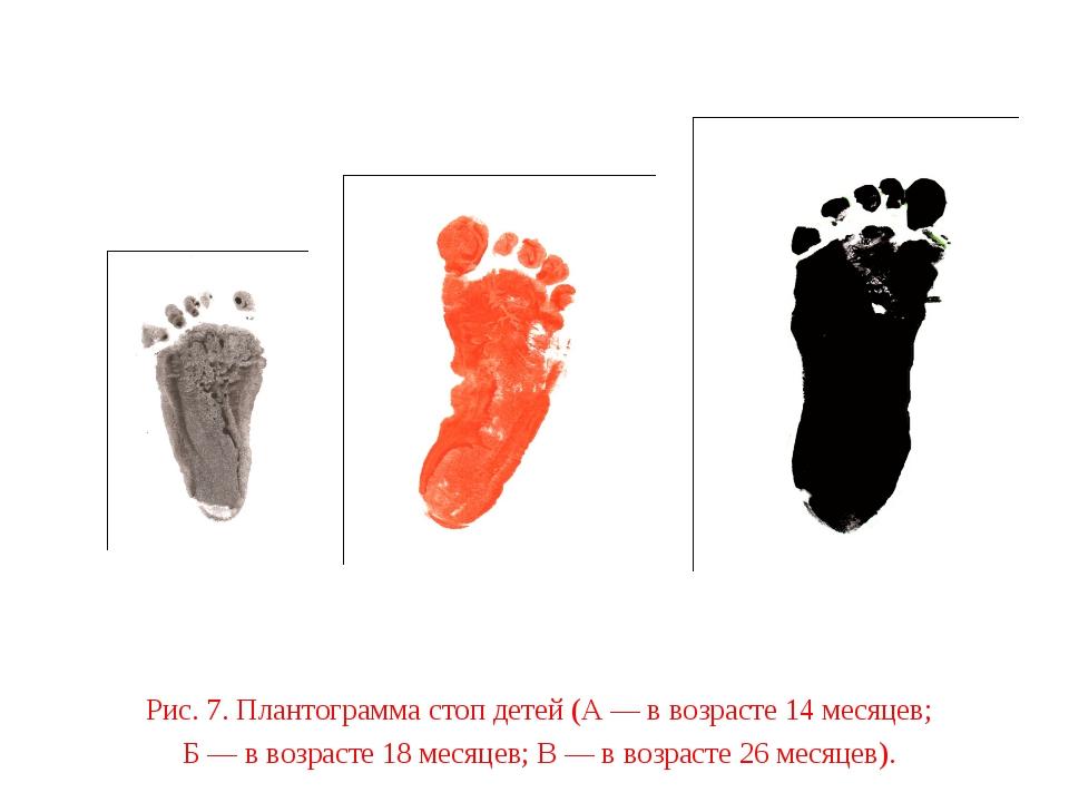 Рис. 7. Плантограмма стоп детей (А — в возрасте 14 месяцев; Б — в возрасте 18...